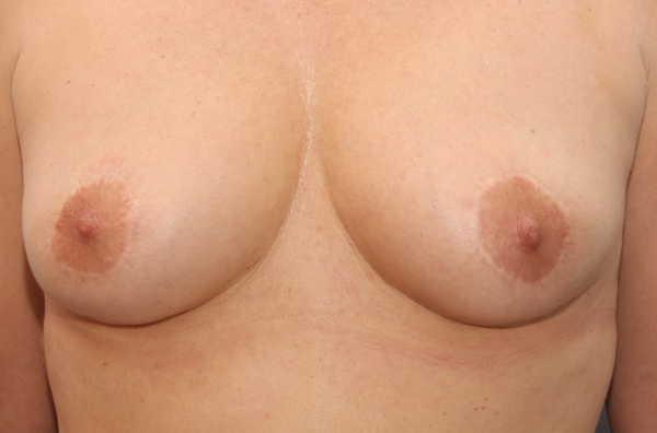 Despues de la retirada de protesis de mama